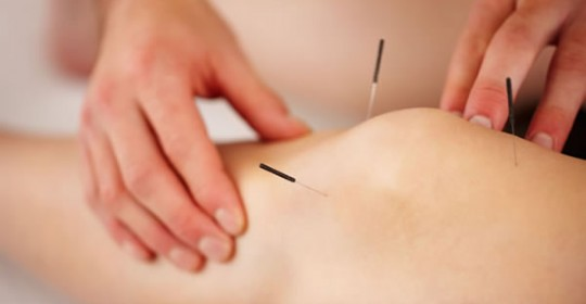 Introducing Acupuncture!!